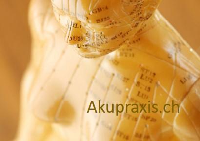 Akupraxis